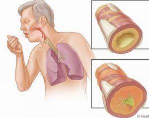 Bệnh hen phế quản về phương diện triệu chứng và chẩn đoán